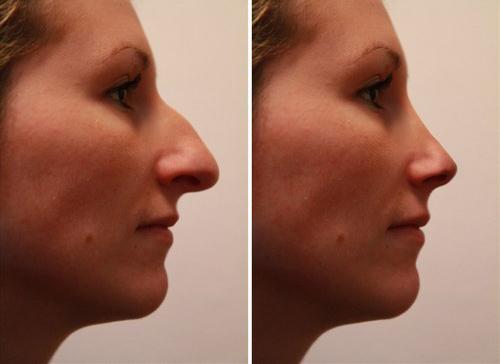 Rhinoplastie-chirurgie-nez