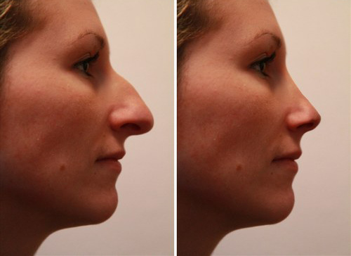 Rhinoplastie chirurgie esthetique du nez