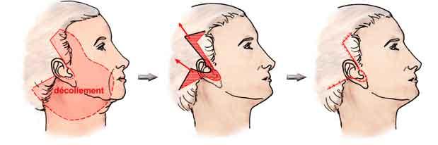 lifting-cervico-facial-tunisie