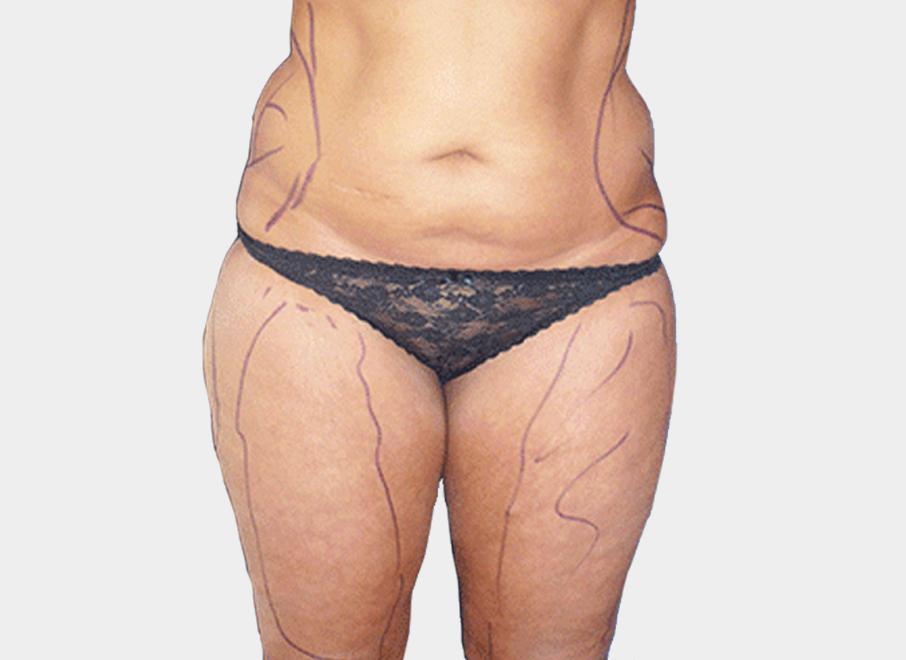 liposuccion-obesite