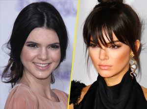 medecine esthetique Kendall Jenner