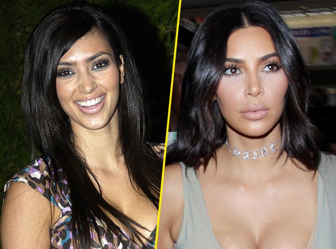 Kim-Kardashian-chirurgie-esthetique