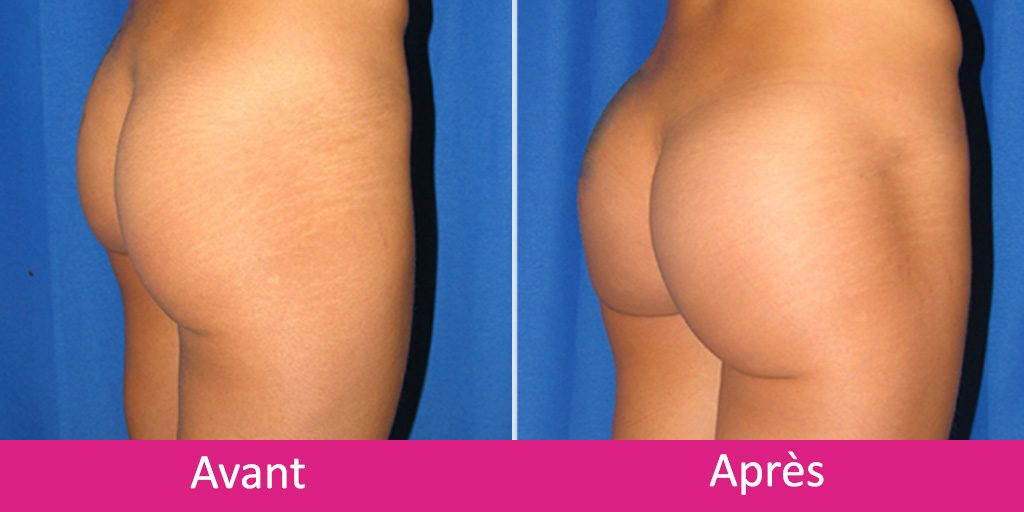 augmentation-fesses-implant