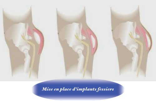 position-implant-fesses