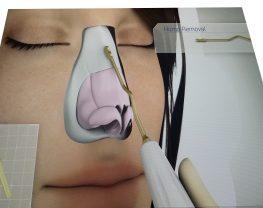 rhinoplastie-ultasonique