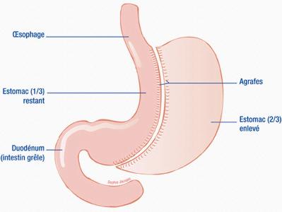 schema-sleeve-gastrectomie