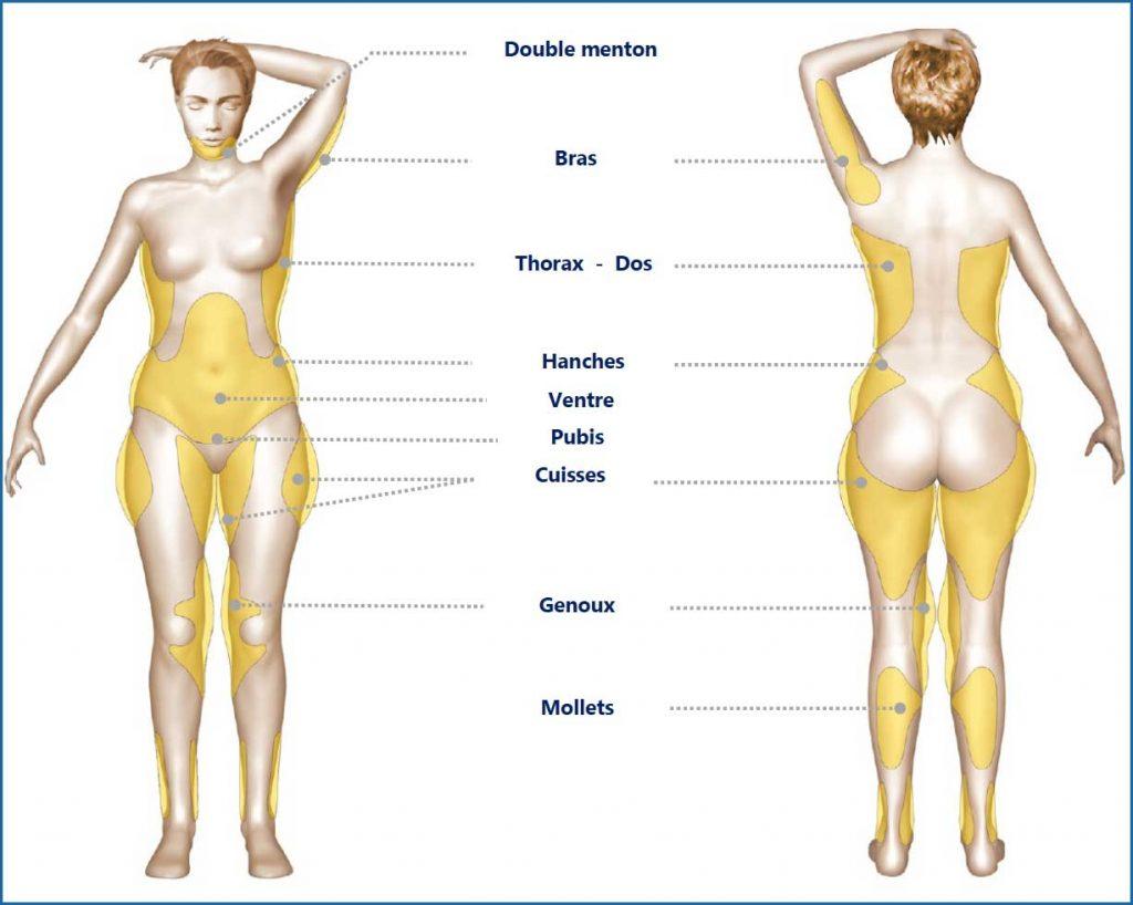 zones-liposuccion-corps