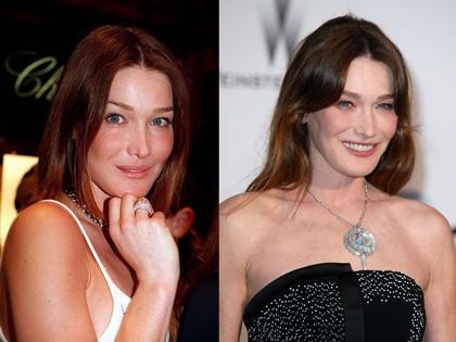 carla bruni avoue enfin son recours la chirurgie esth tique blog chirurgie esth tique. Black Bedroom Furniture Sets. Home Design Ideas