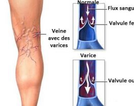 traitement-varices-tunisie