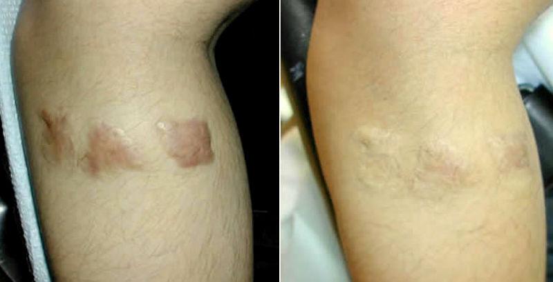 greffe de peau sur cicatrice
