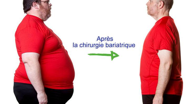 chirurgie bariatrique tunisie