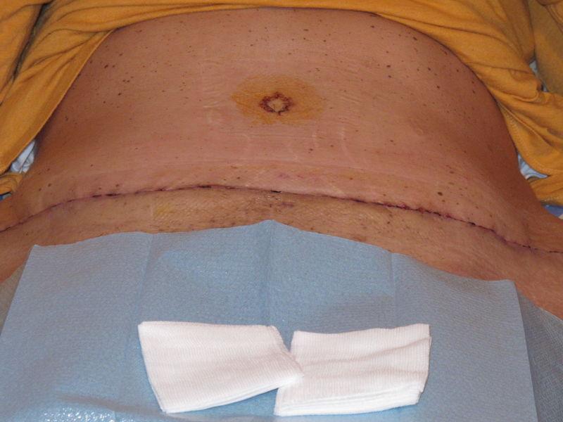 Cicatrices après plastie abdominale