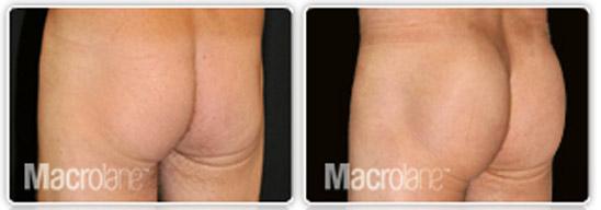 augmentation-fesses-macrolane