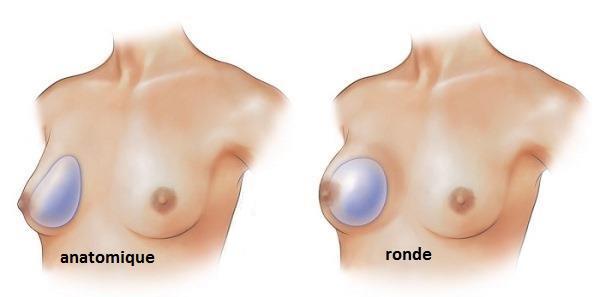augmentation-taille-seins-par-protheses-tunisie