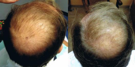 prp-cheveux-tunisie