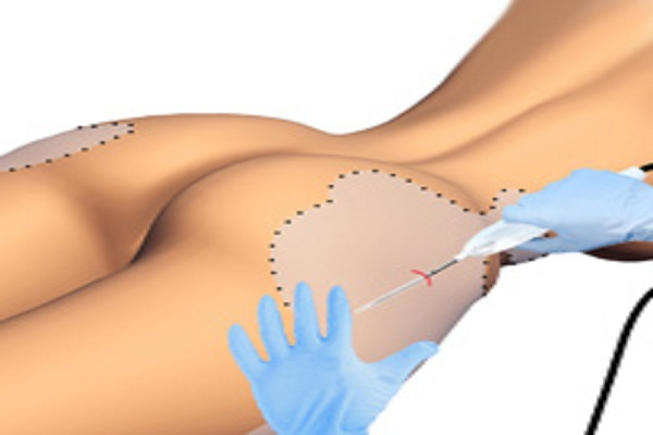 https://www.tunisie-chirurgie-esthetique.com/blog/wp-content/uploads/2018/02/liposuccion-au-laser-tunisie.jpg