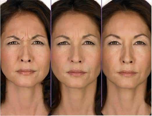 botox-rides-visage