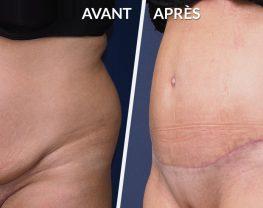 resultat-abdominoplastie