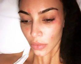 psoriasis-kim-Kardashian