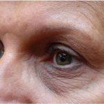 traitement-vieillissement-sourcil