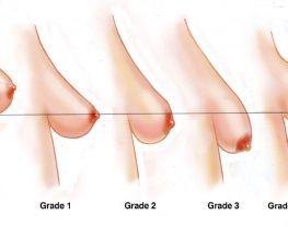 grades ptose mammaire