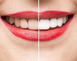 facette-dentaire-lumineers