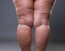 stades-lipoedeme-liposuccion