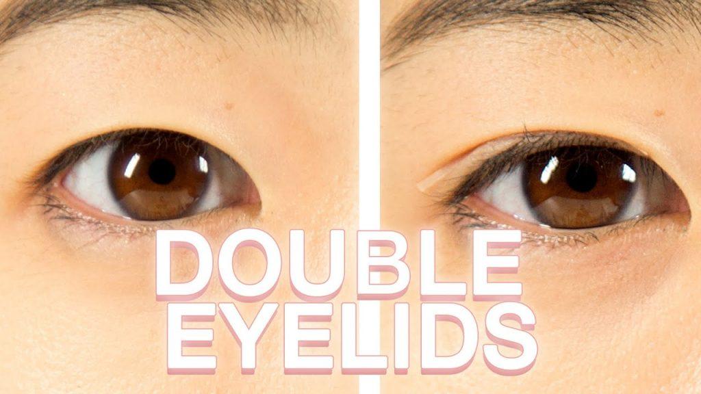 double eyelide