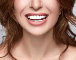 hollywood-smile-sourire hollywoodien
