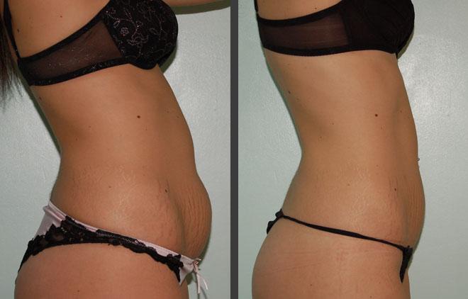 liposuccion ventre femmes