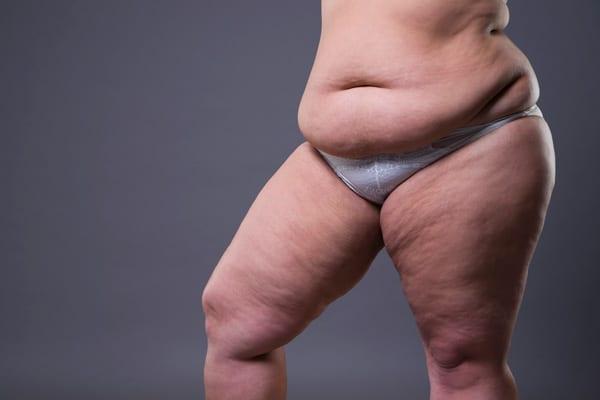 cout-plastie-abdominale