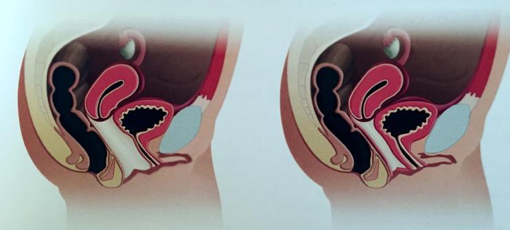 chirurgie relachement vaginal