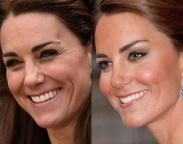 kate middleton baby botox
