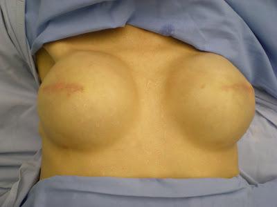 reconstruction-mammaire