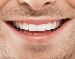 soins dentaires tunisie