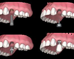 avantages-implants-dentaires