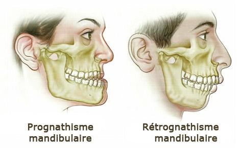 prognathisme-retrognathisme-mandibulaire
