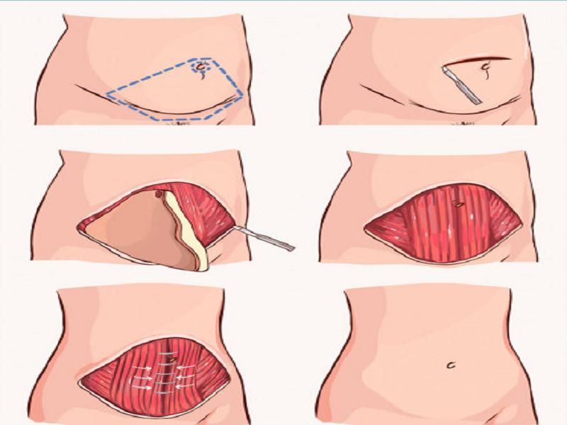 deroulement abdominoplastie turquie