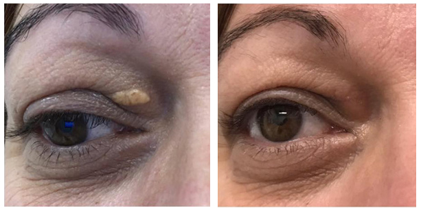 Résultat elimination-xanthelasma-avant-apres