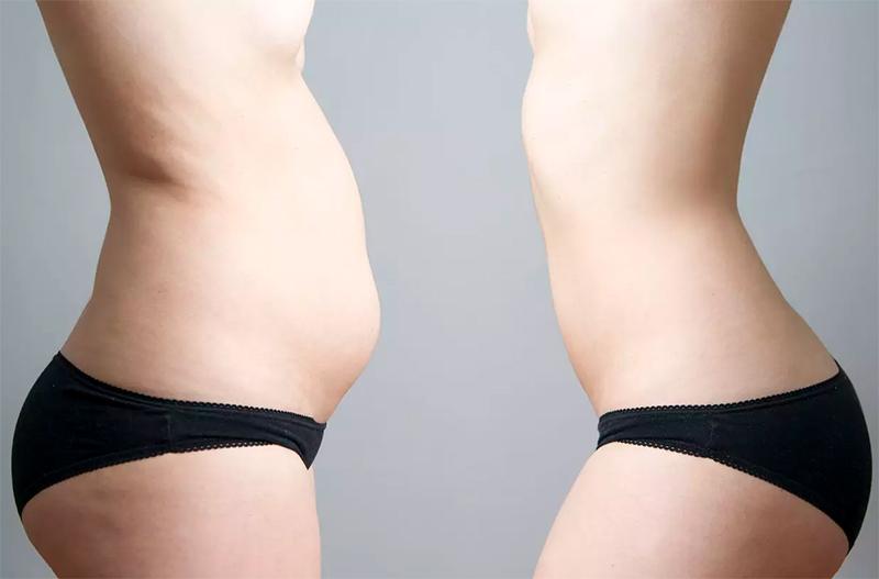 resultat abdominoplastie Turquie
