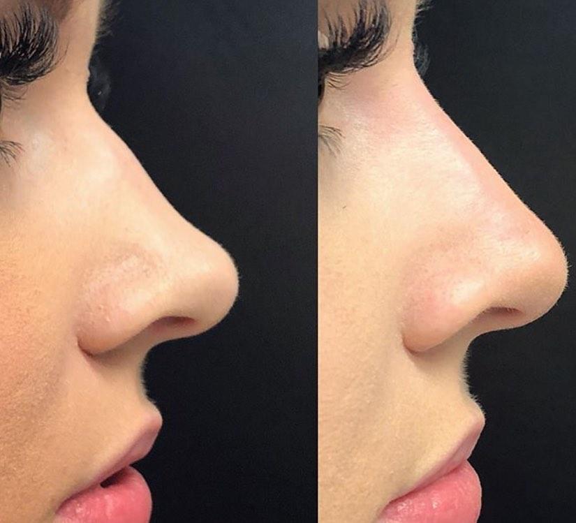 resultat fils tenseurs nez