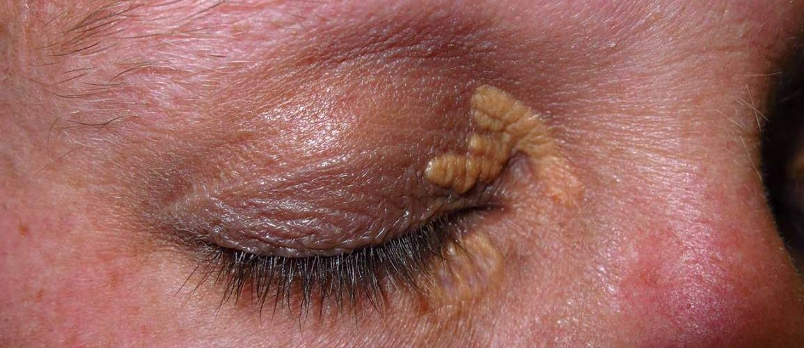 Traitement Xanthelasma Tunisie