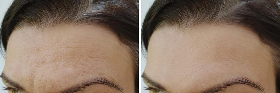 resultat-endotine-lifting-front-sourcils