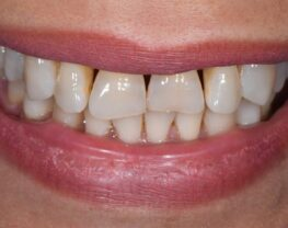 dents-chevauchees