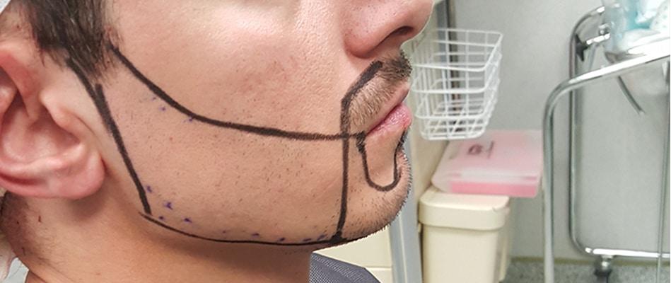 deroulement-greffe-barbe