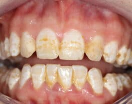 fluorose-dentaire