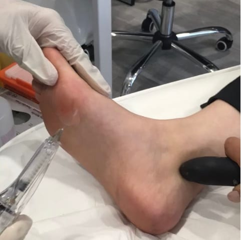 foot lift loub job