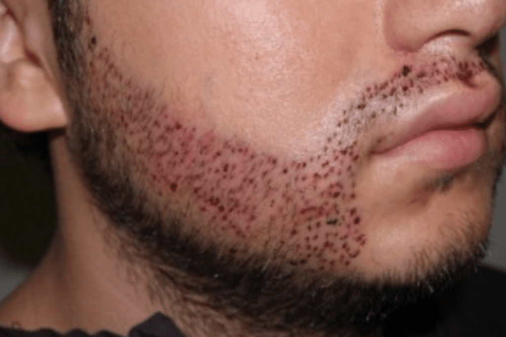greffe barbe dhi