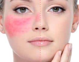 laser-erythrose-couperose-rosacee
