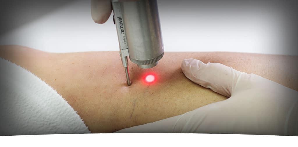 laser-traitement-varices
